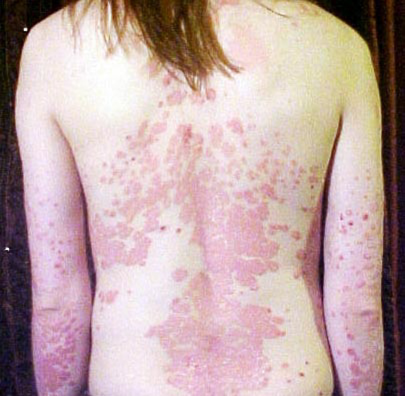 guttate psoriasis meaning in marathi)